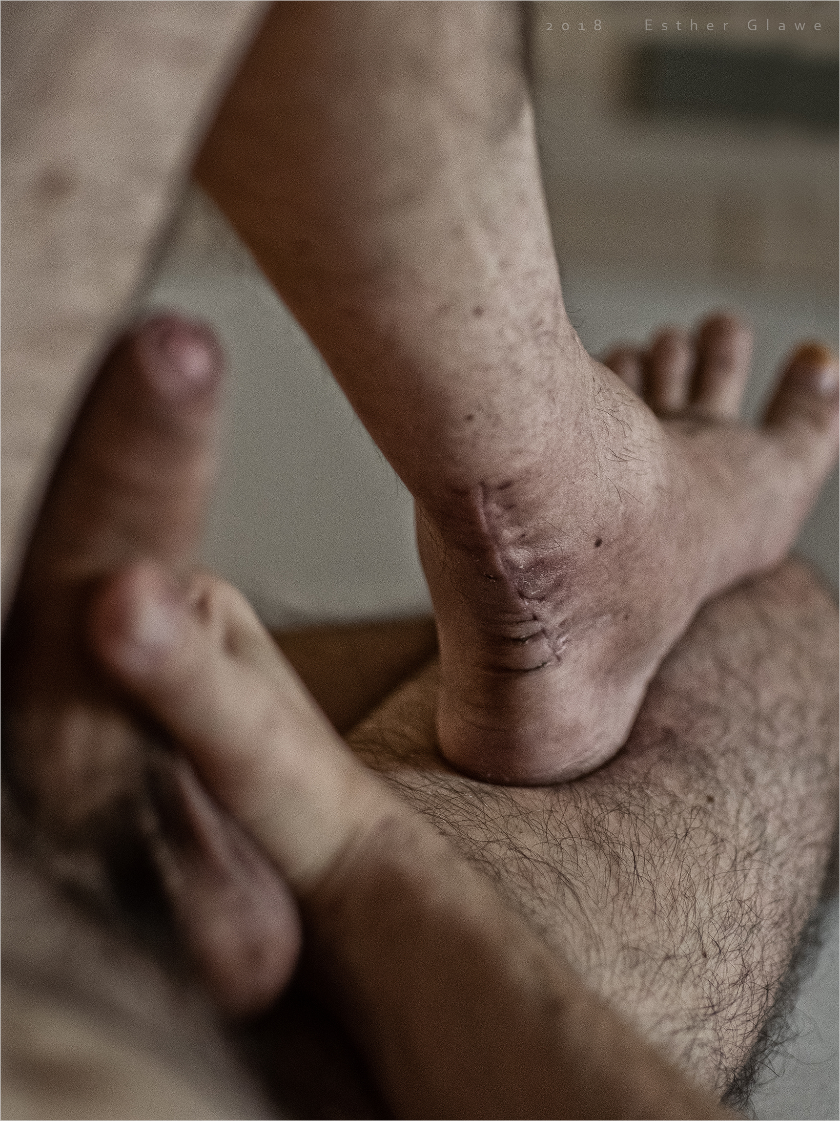 männerfuß mit narbe und penis